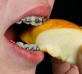 Jawbones are 'shaped by diet', a study finds